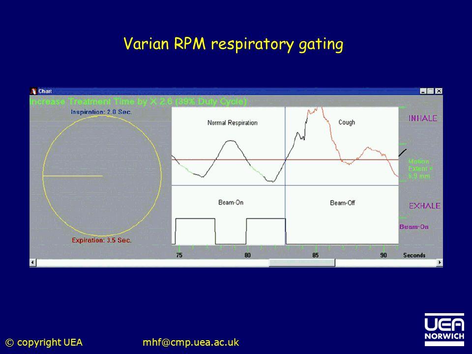 Varian RPM respiratory gating
