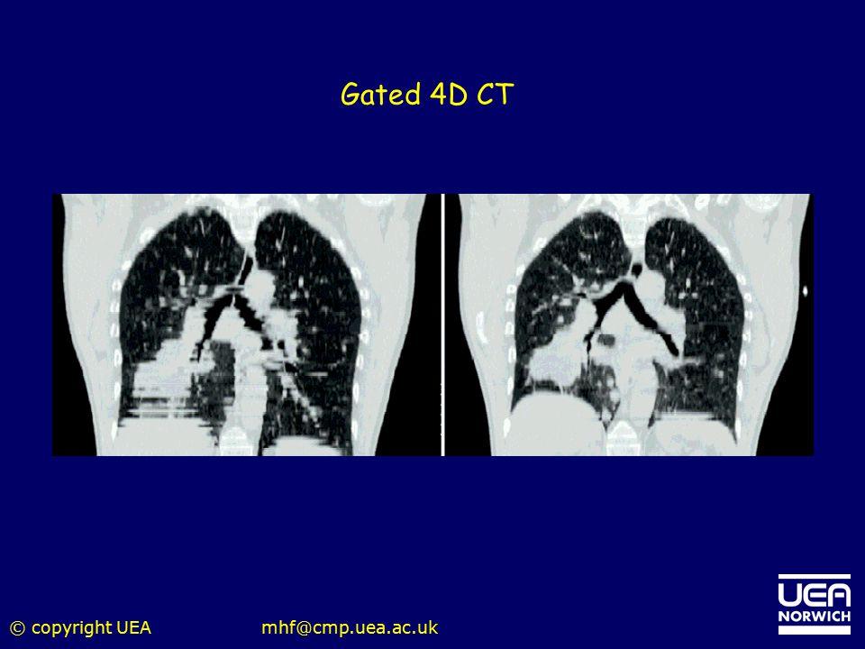 Gated 4D CT © copyright UEA mhf@cmp.uea.ac.uk