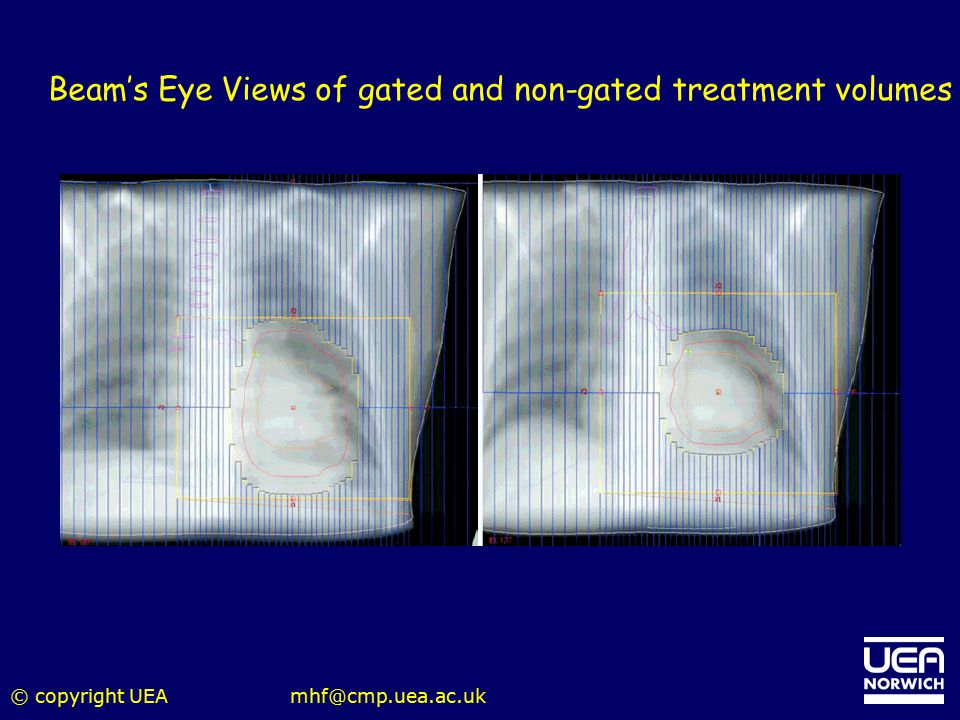 Beam's Eye Views of gated and non-gated treatment volumes