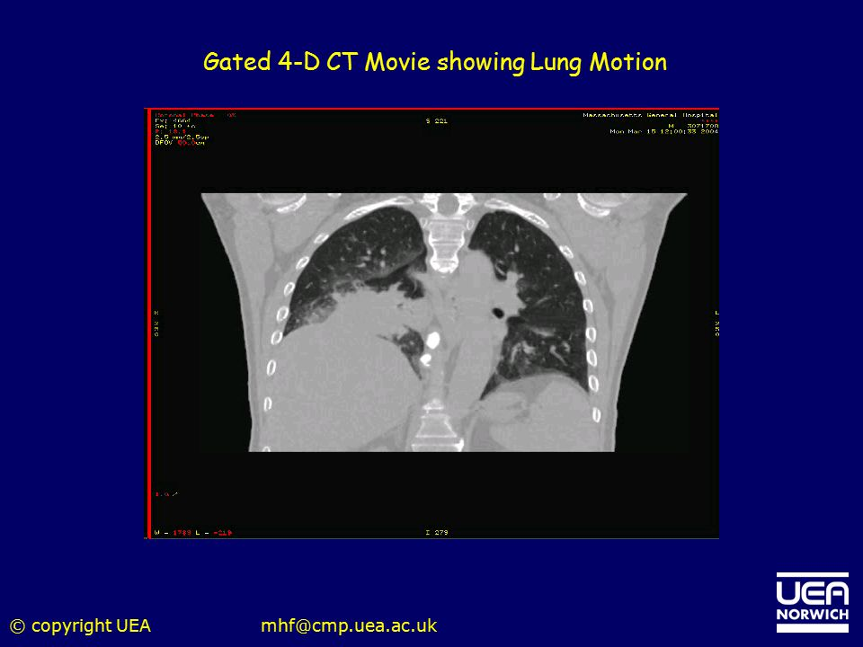Gated 4-D CT Movie showing Lung Motion