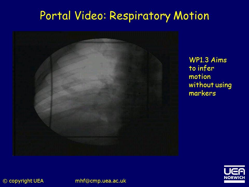 Portal Video: Respiratory Motion