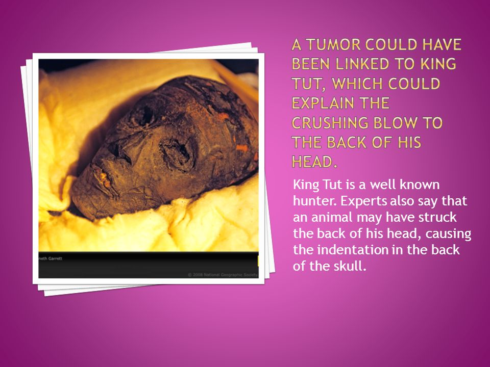 A TUMOR COULD HAVE BEEN LINKED TO KING TUT, WHICH COULD EXPLAIN THE CRUSHING BLOW TO THE BACK OF HIS HEAD.