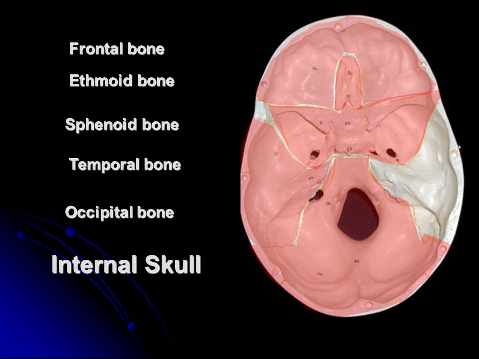 Internal Skull Frontal bone Ethmoid bone Sphenoid bone Temporal bone