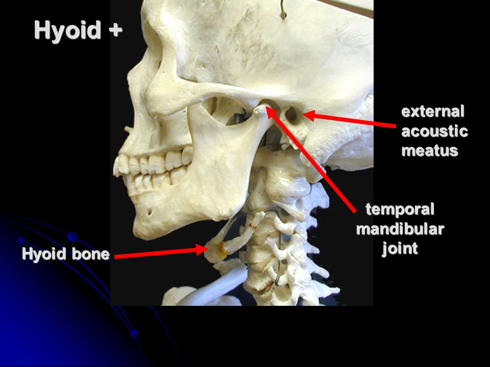 Hyoid + external acoustic meatus temporal mandibular joint Hyoid bone