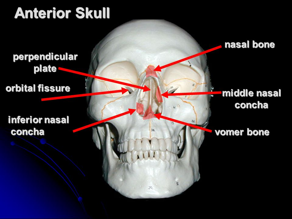 Anterior Skull nasal bone perpendicular plate orbital fissure