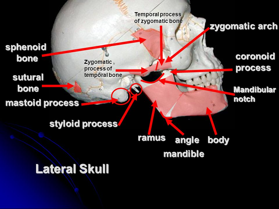 Lateral Skull zygomatic arch sphenoid bone coronoid process