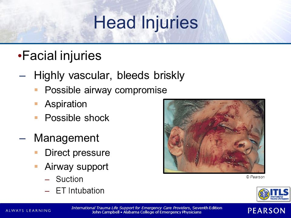 Head Injuries Scalp wound Highly vascular, bleeds briskly Management