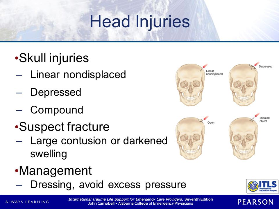 Brain Injuries Concussion No structural injury to brain