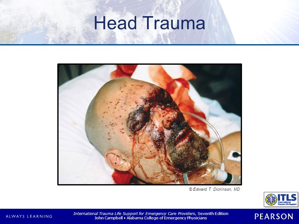 Overview Anatomy of head and brain Pathophysiology of traumatic injury