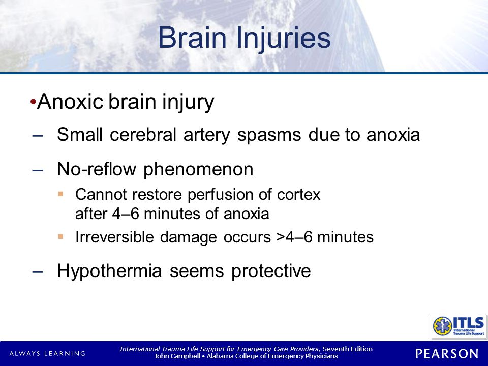 Brain Injuries Intracranial hemorrhage Epidural Subdural Intracerebral