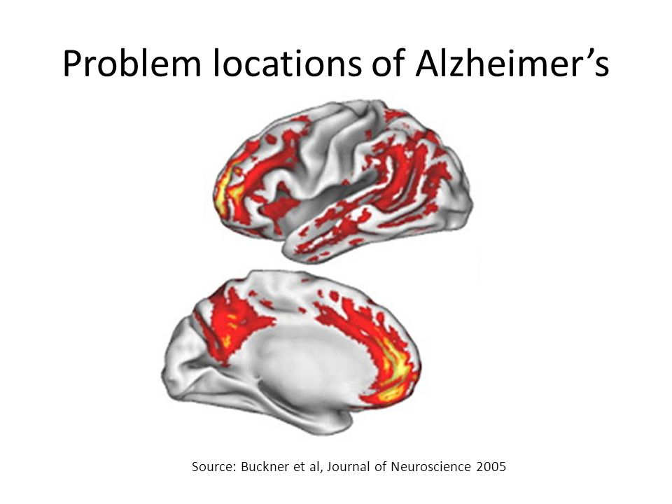 Problem locations of Alzheimer's