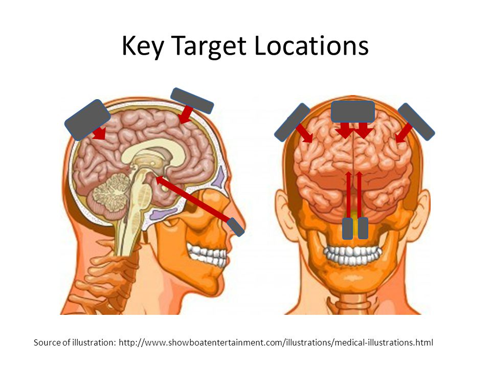 Key Target Locations Source of illustration: http://www.showboatentertainment.com/illustrations/medical-illustrations.html.