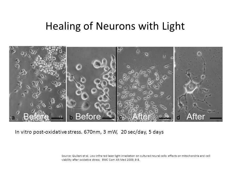 Healing of Neurons with Light
