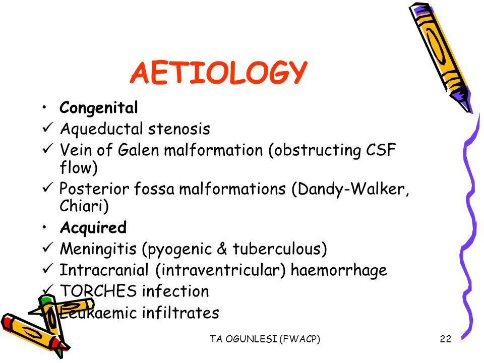 AETIOLOGY Congenital Aqueductal stenosis