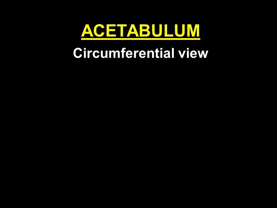 ACETABULUM Circumferential view