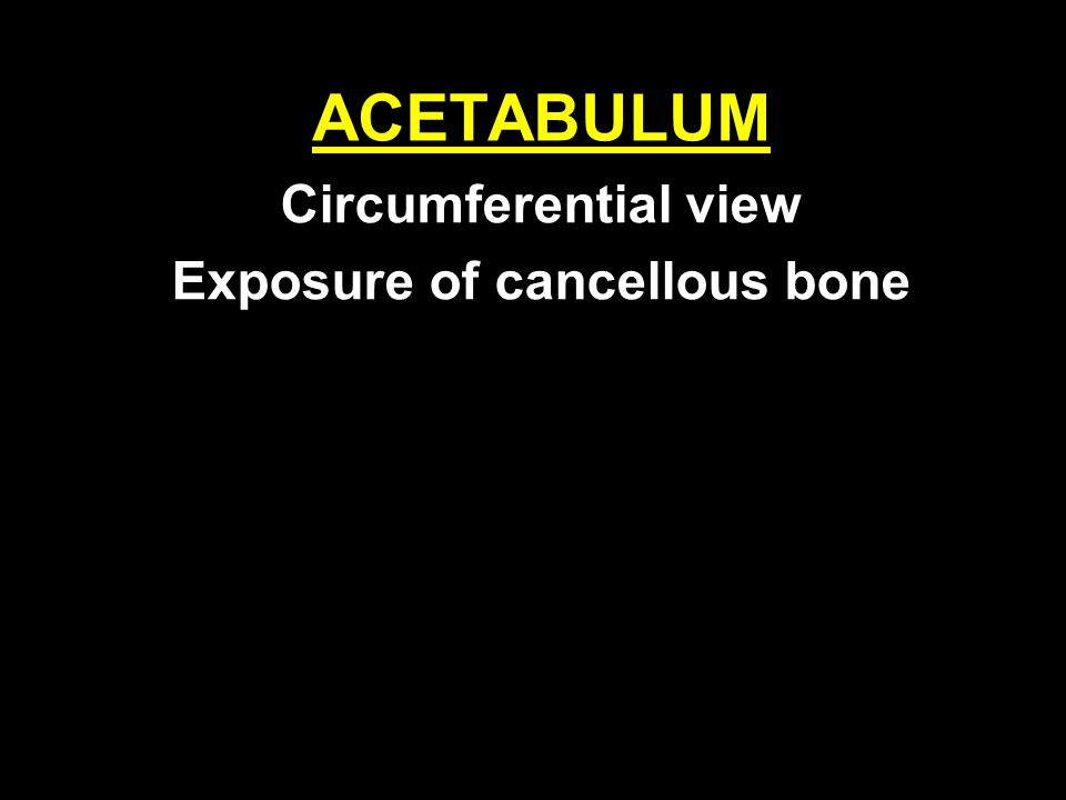 Circumferential view Exposure of cancellous bone