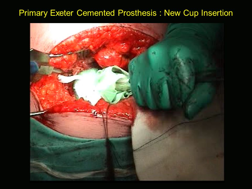 Primary Exeter Cemented Prosthesis : New Cup Insertion