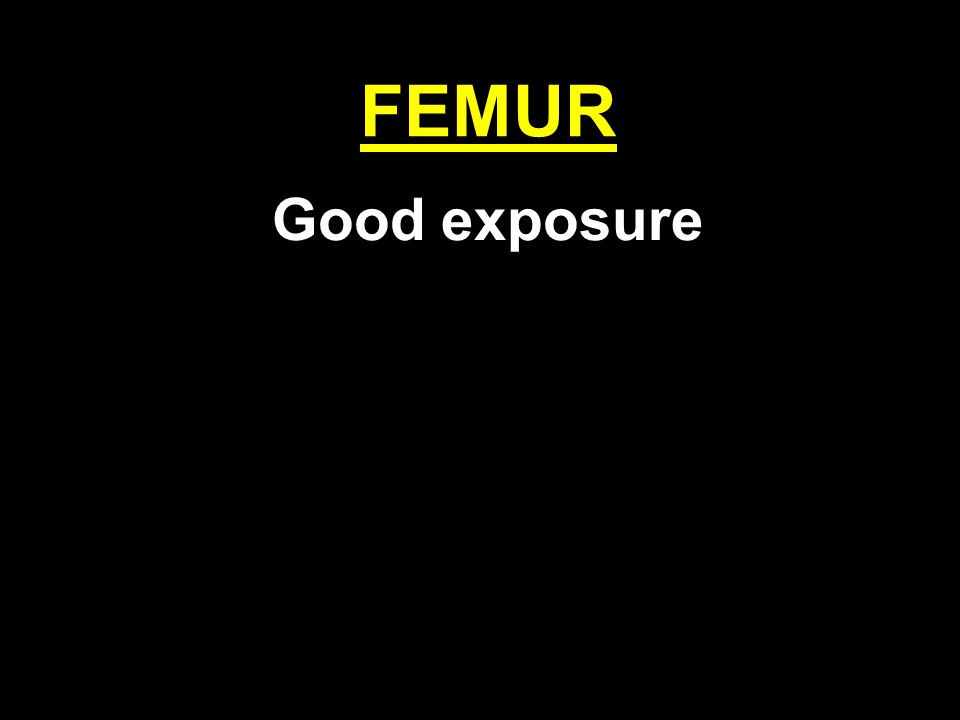 FEMUR Good exposure