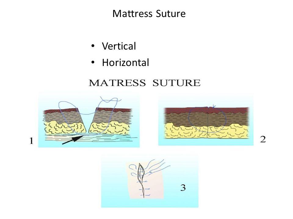 Mattress Suture Vertical Horizontal
