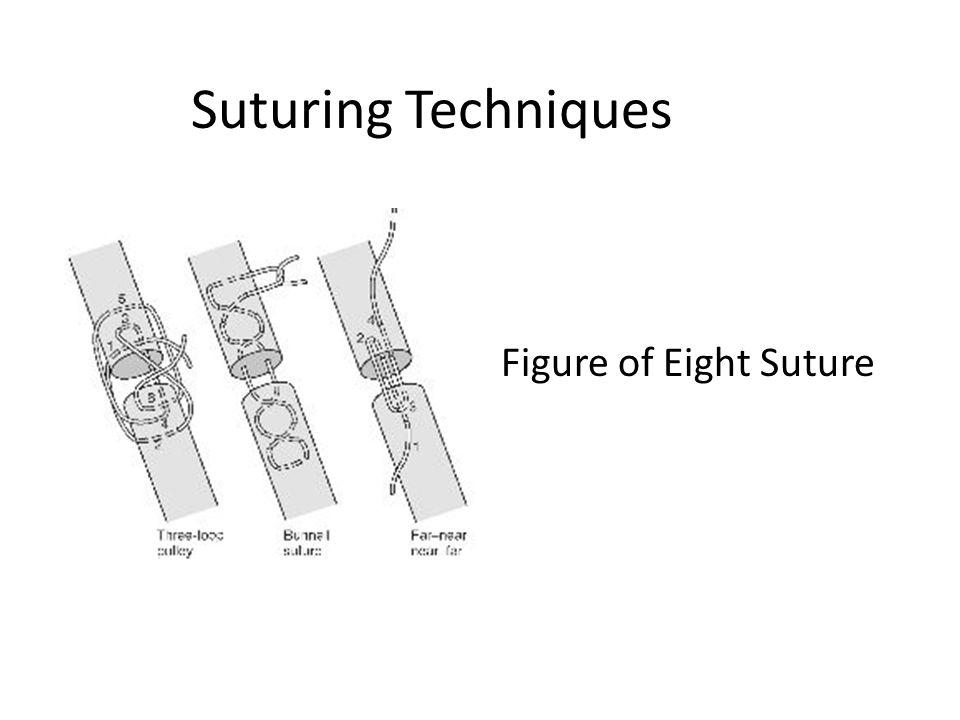 Suturing Techniques Figure of Eight Suture