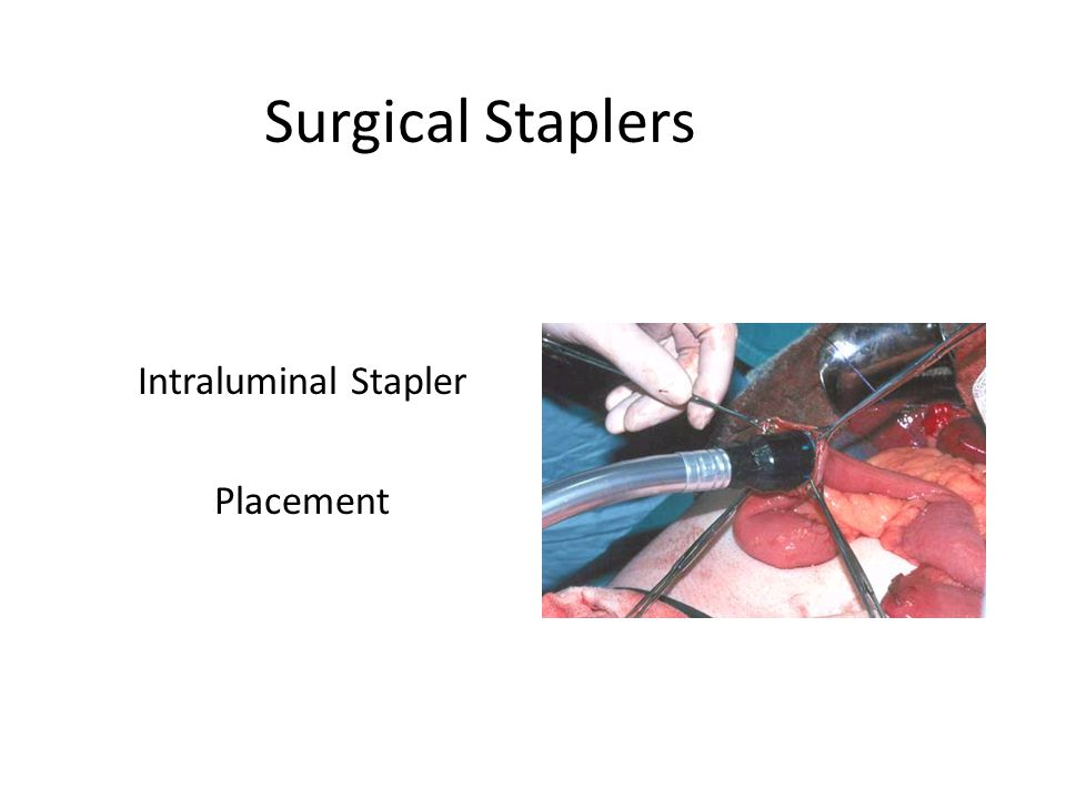 Surgical Staplers Intraluminal Stapler Placement