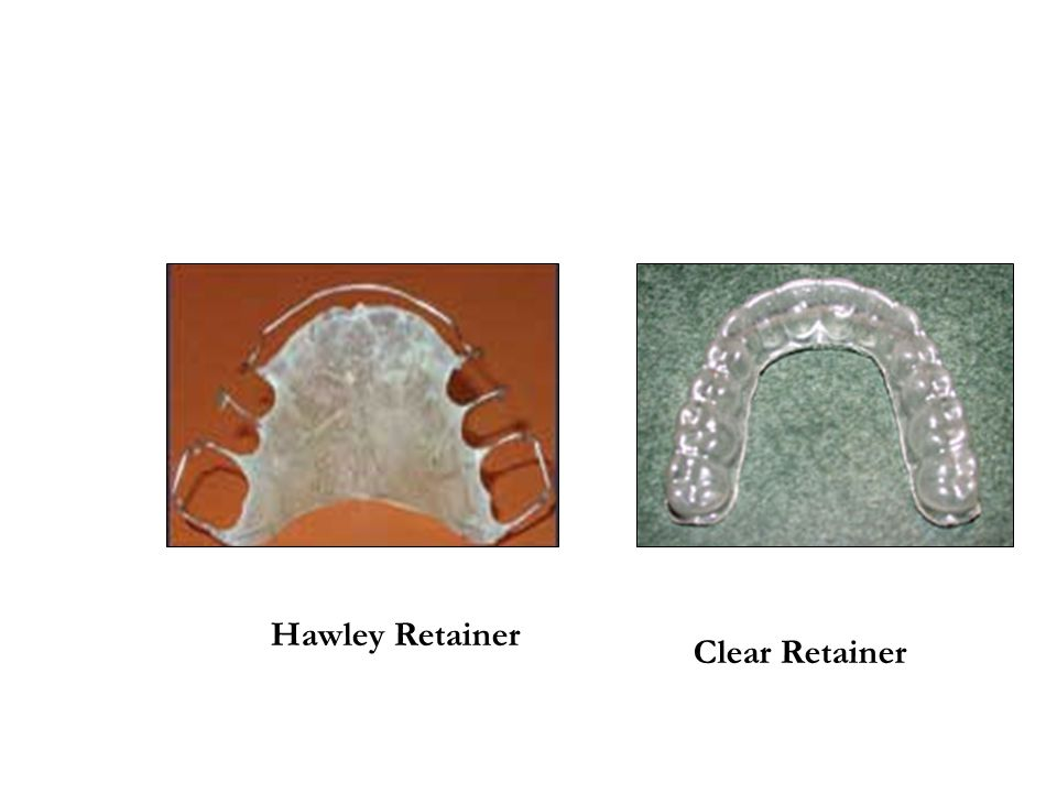 Hawley Retainer Clear Retainer