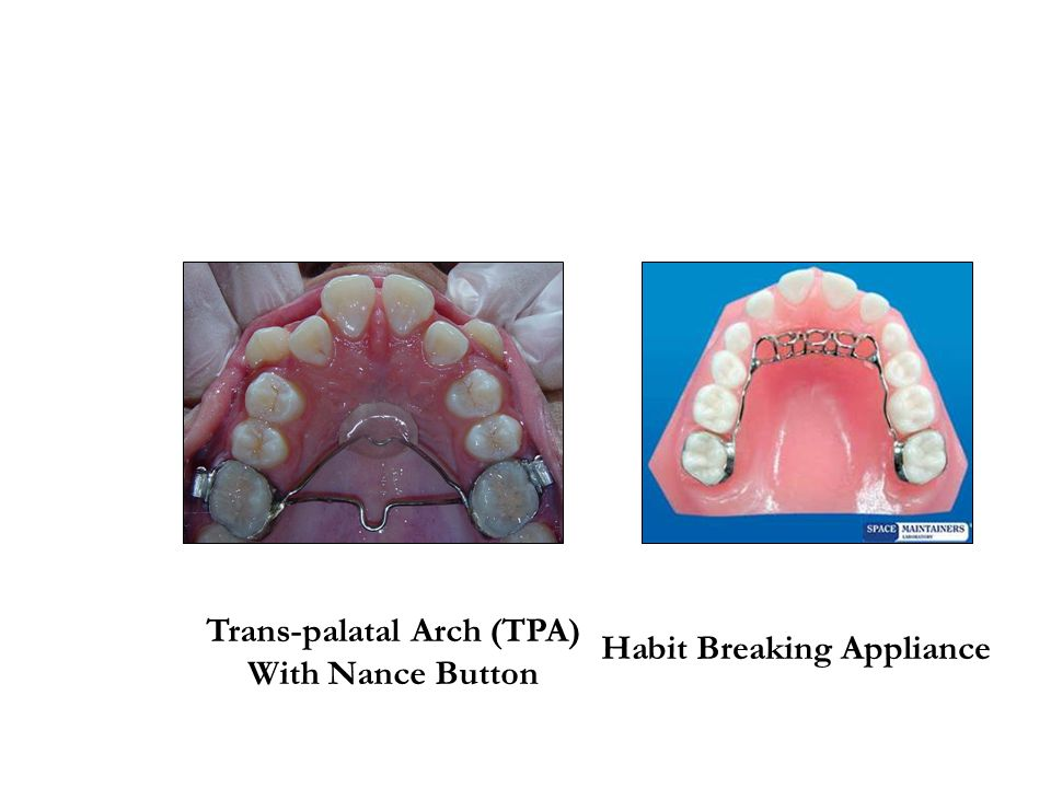 Trans-palatal Arch (TPA) Habit Breaking Appliance