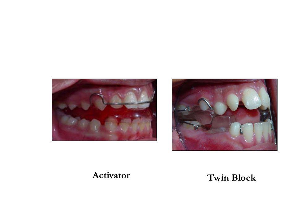 Activator Twin Block