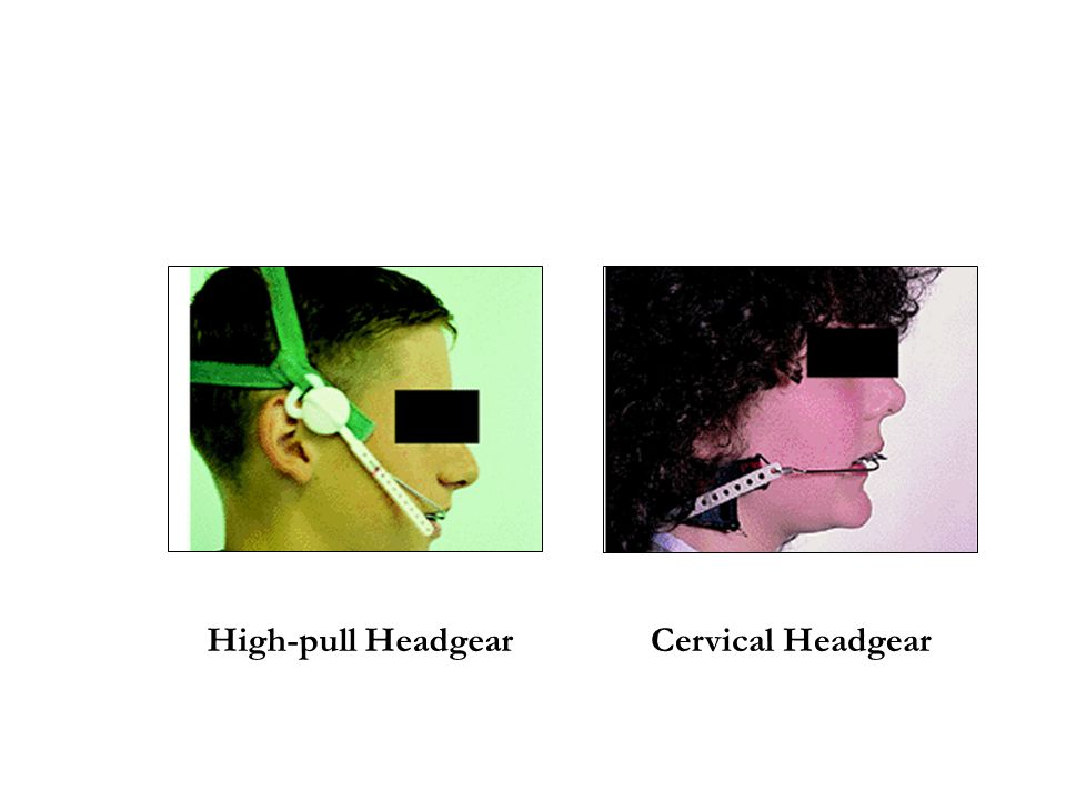 High-pull Headgear Cervical Headgear