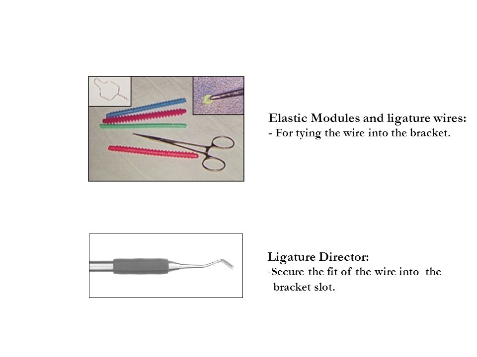 Elastic Modules and ligature wires: