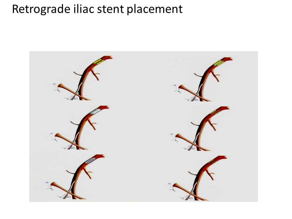 Retrograde iliac stent placement