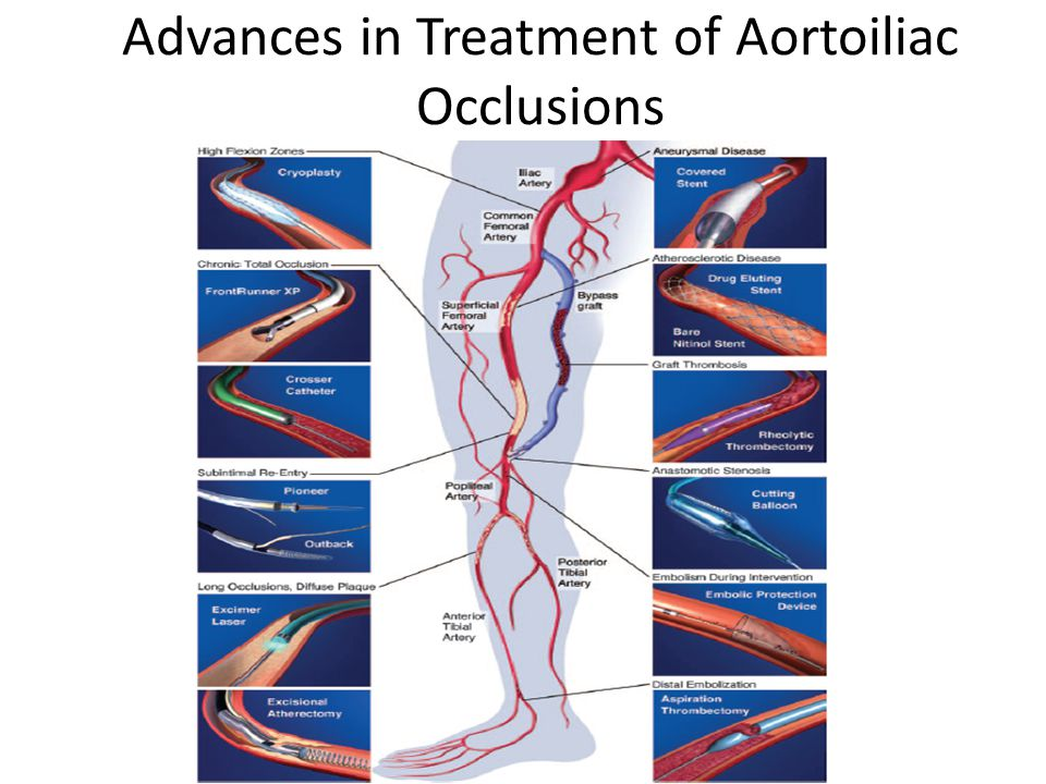 Advances in Treatment of Aortoiliac Occlusions