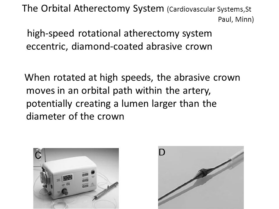 The Orbital Atherectomy System (Cardiovascular Systems,St Paul, Minn)