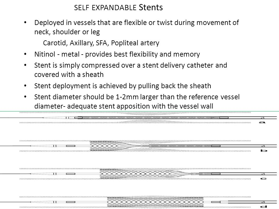 SELF EXPANDABLE Stents