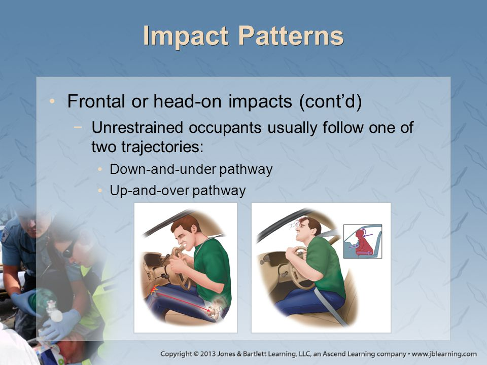 Impact Patterns Frontal or head-on impacts (cont'd)