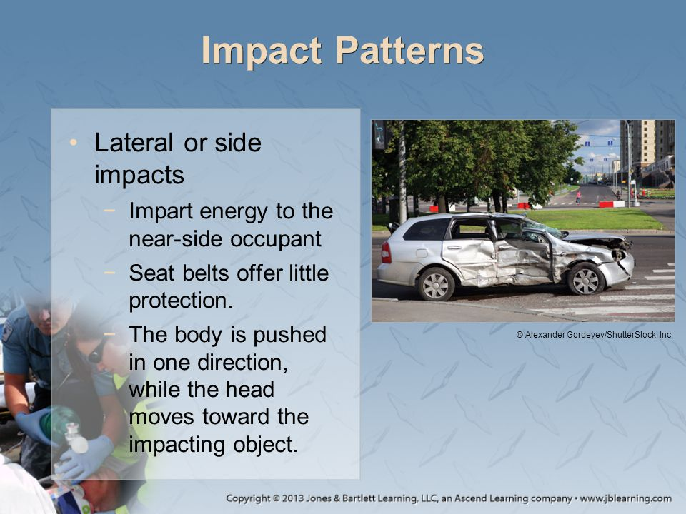 Impact Patterns Lateral or side impacts