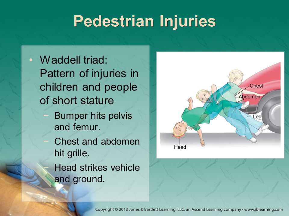 Pedestrian Injuries Waddell triad: Pattern of injuries in children and people of short stature. Bumper hits pelvis and femur.