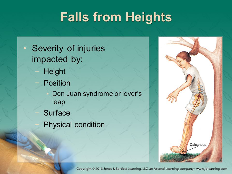 Falls from Heights Severity of injuries impacted by: Height Position