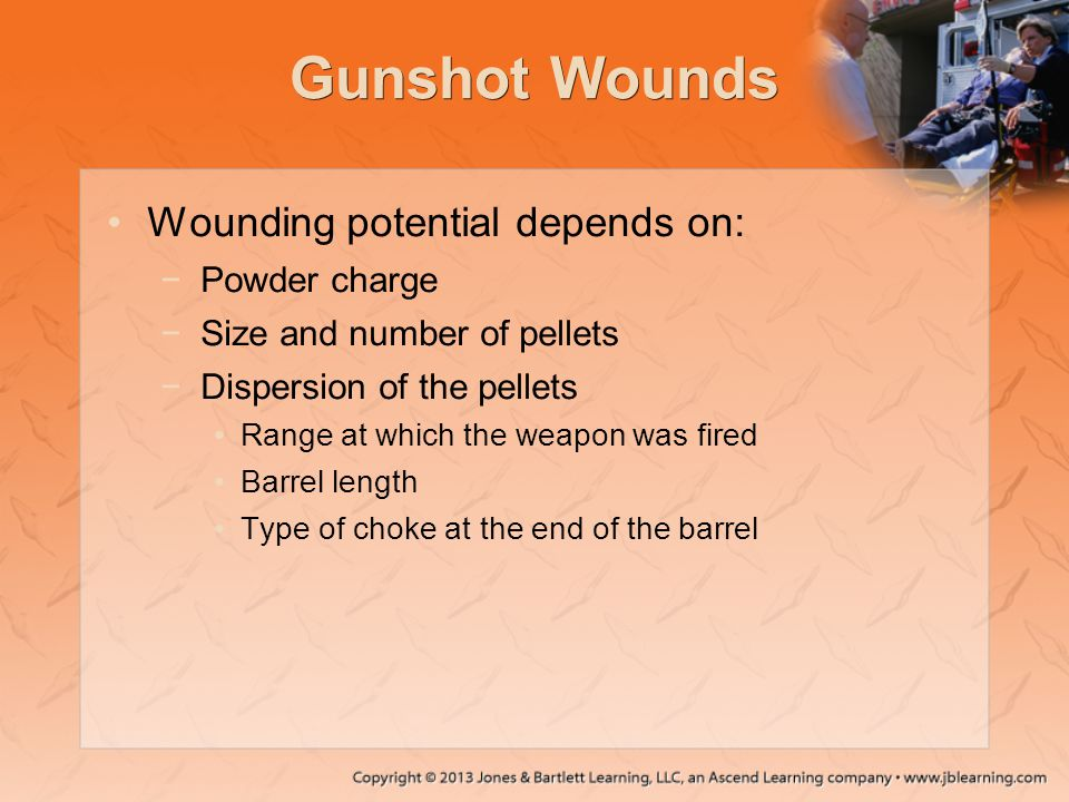 Gunshot Wounds Wounding potential depends on: Powder charge