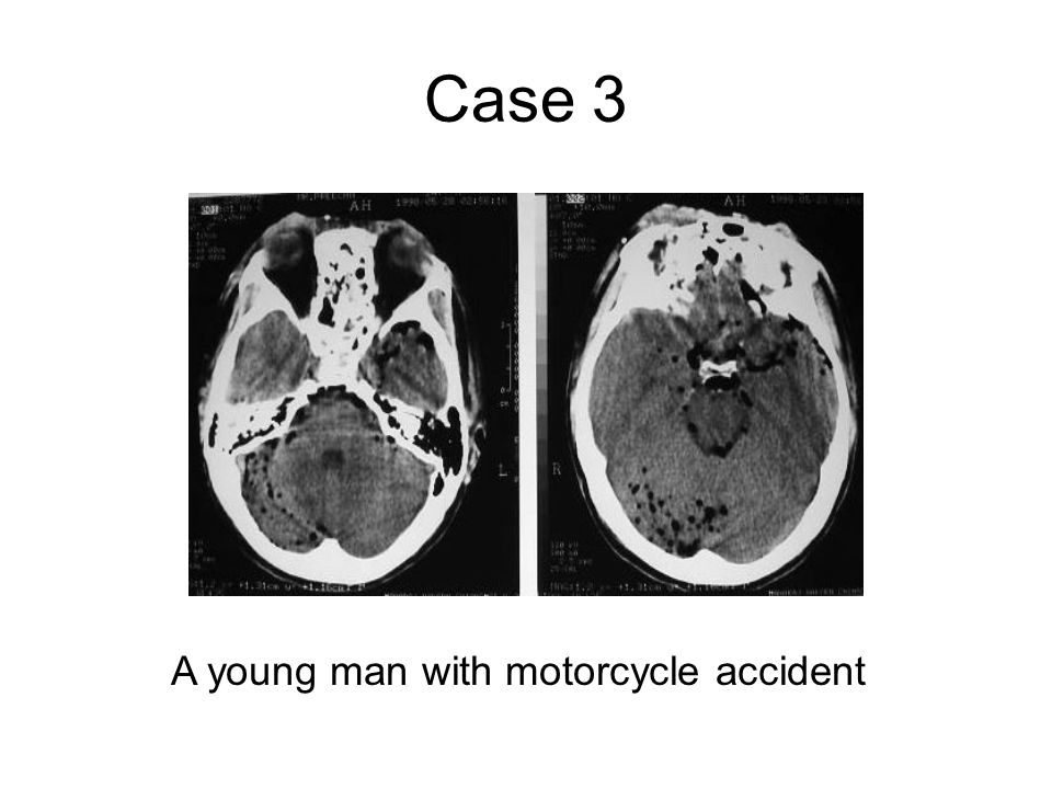 Case 3 A young man with motorcycle accident