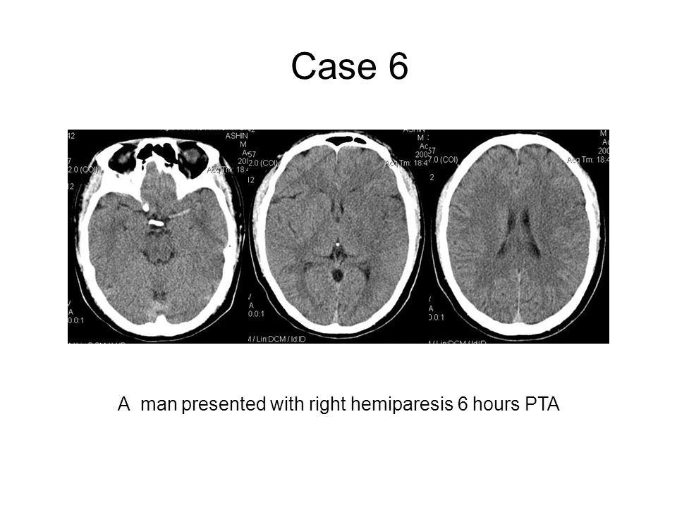 A man presented with right hemiparesis 6 hours PTA