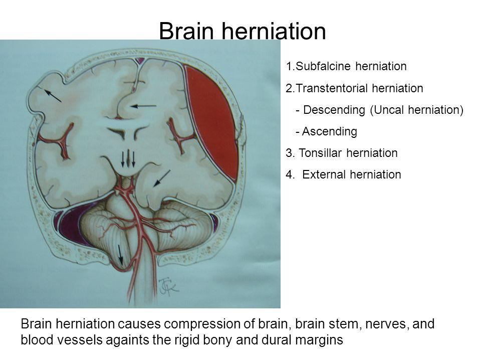 Brain herniation 1.Subfalcine herniation. 2.Transtentorial herniation. - Descending (Uncal herniation)