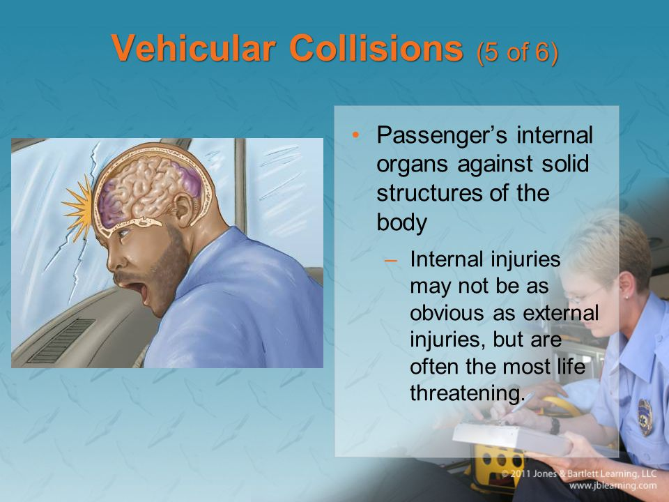 Vehicular Collisions (5 of 6)