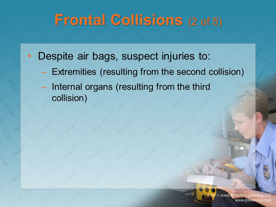 Frontal Collisions (2 of 5)