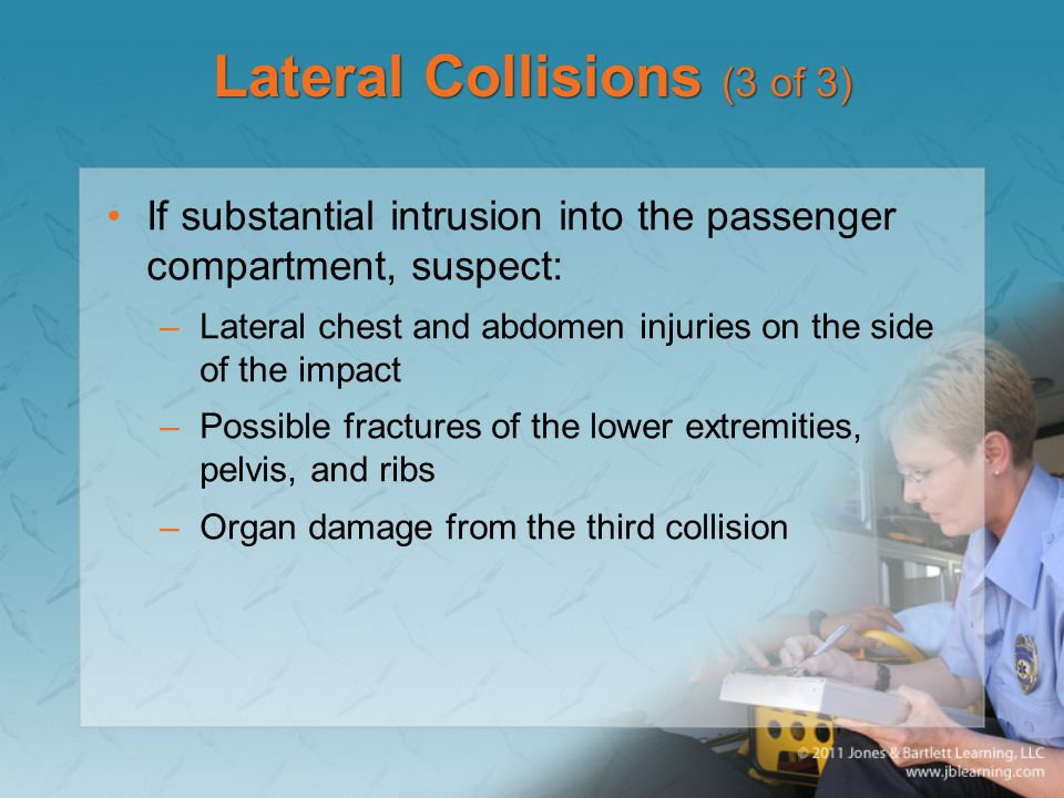 Lateral Collisions (3 of 3)