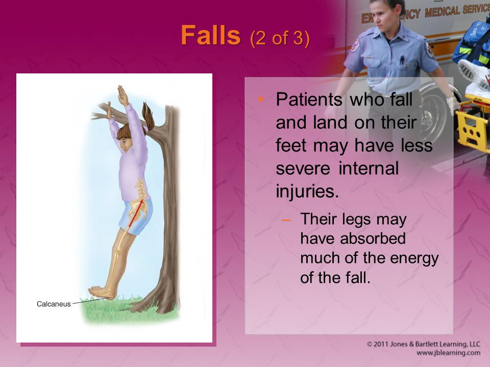 Falls (2 of 3) Patients who fall and land on their feet may have less severe internal injuries.