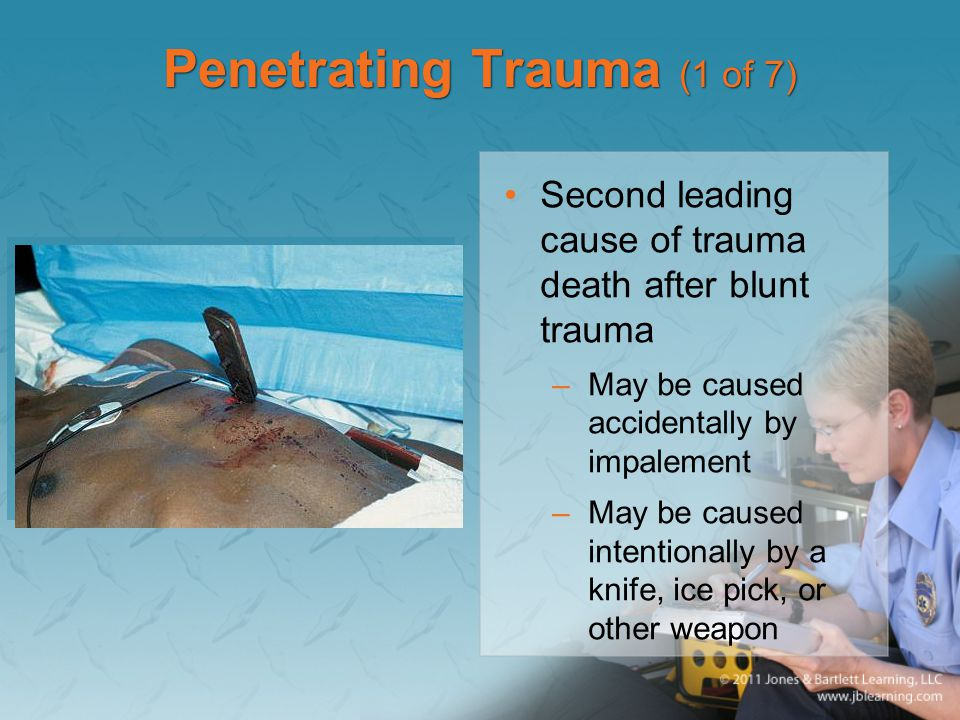 Penetrating Trauma (1 of 7)