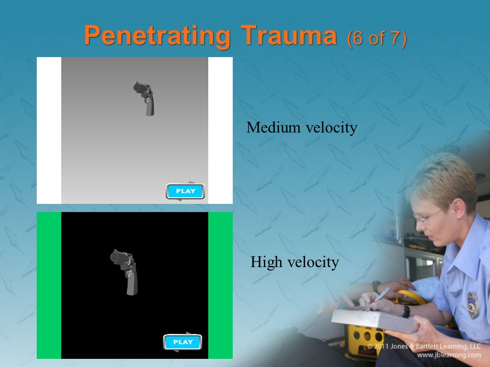 Penetrating Trauma (6 of 7)