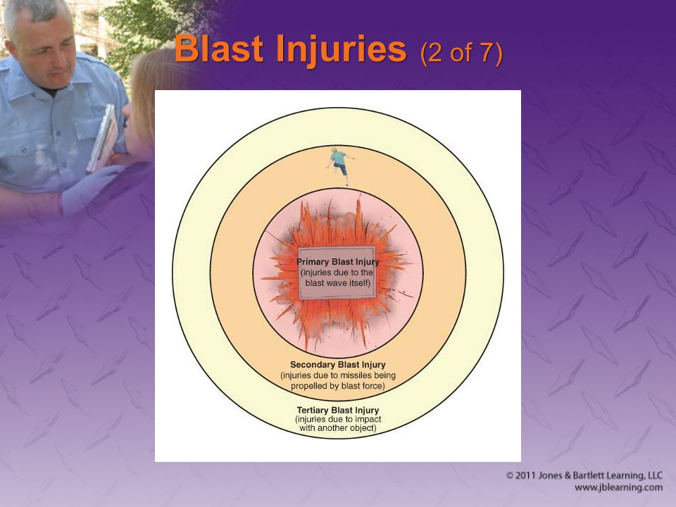 Blast Injuries (2 of 7)