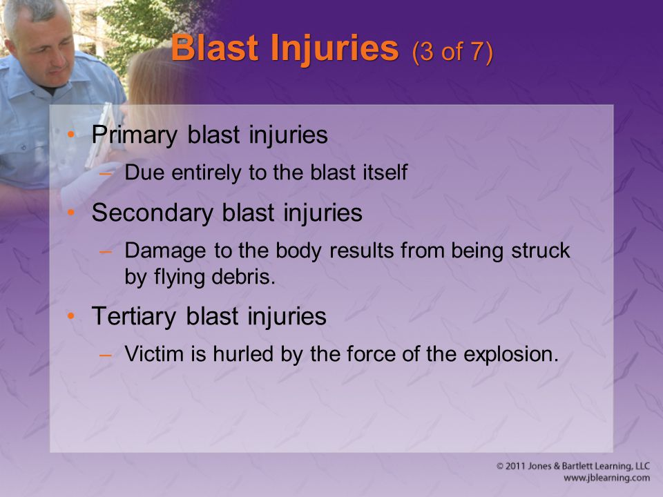 Blast Injuries (3 of 7) Primary blast injuries